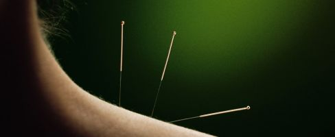 Call us to make an acupuncture appointment